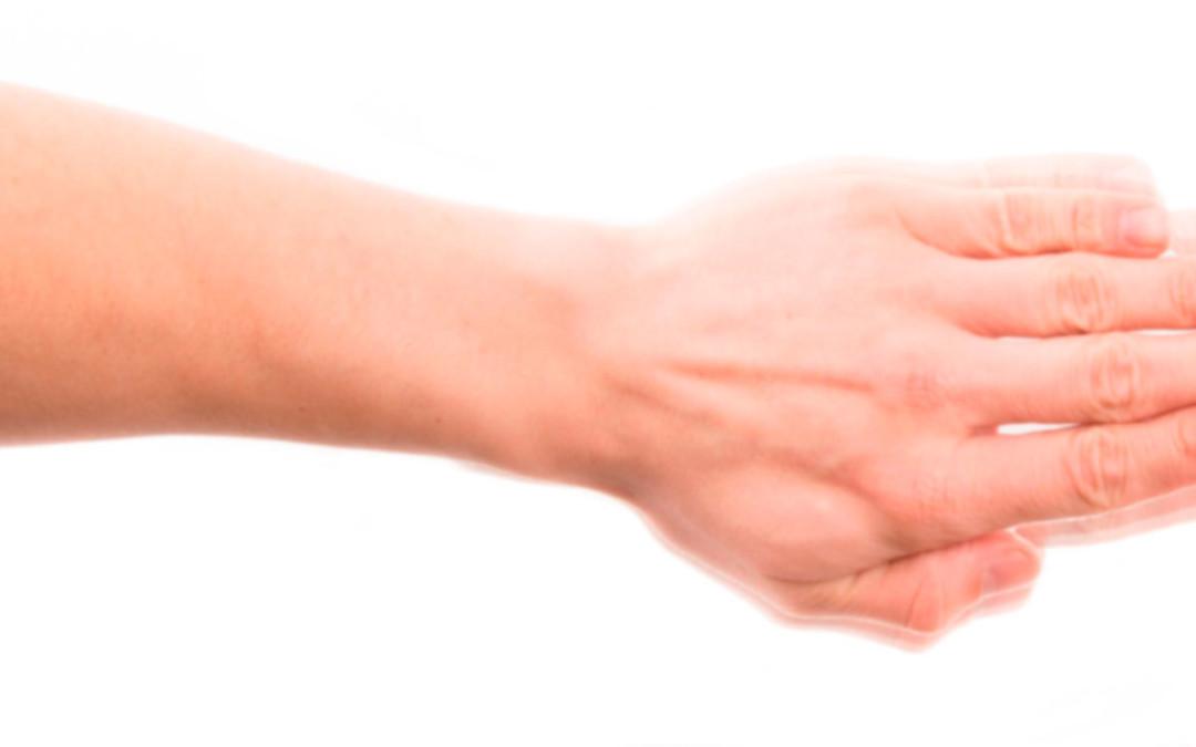 Intervención Integral en la Enfermedad del Parkinson