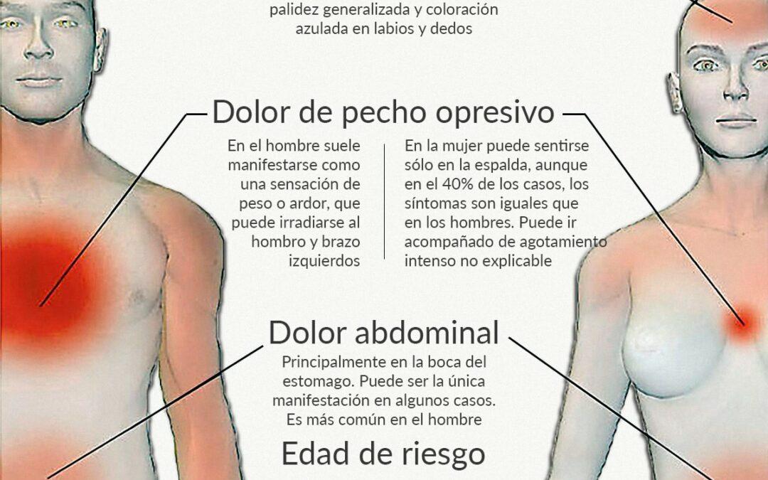 Infartos de Miocardio en hombres y mujeres